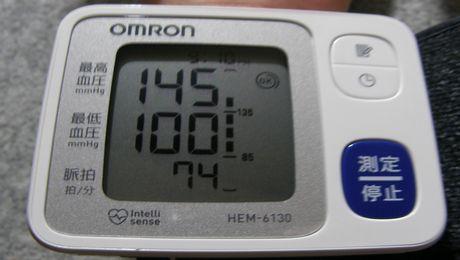 血圧計 オムロン